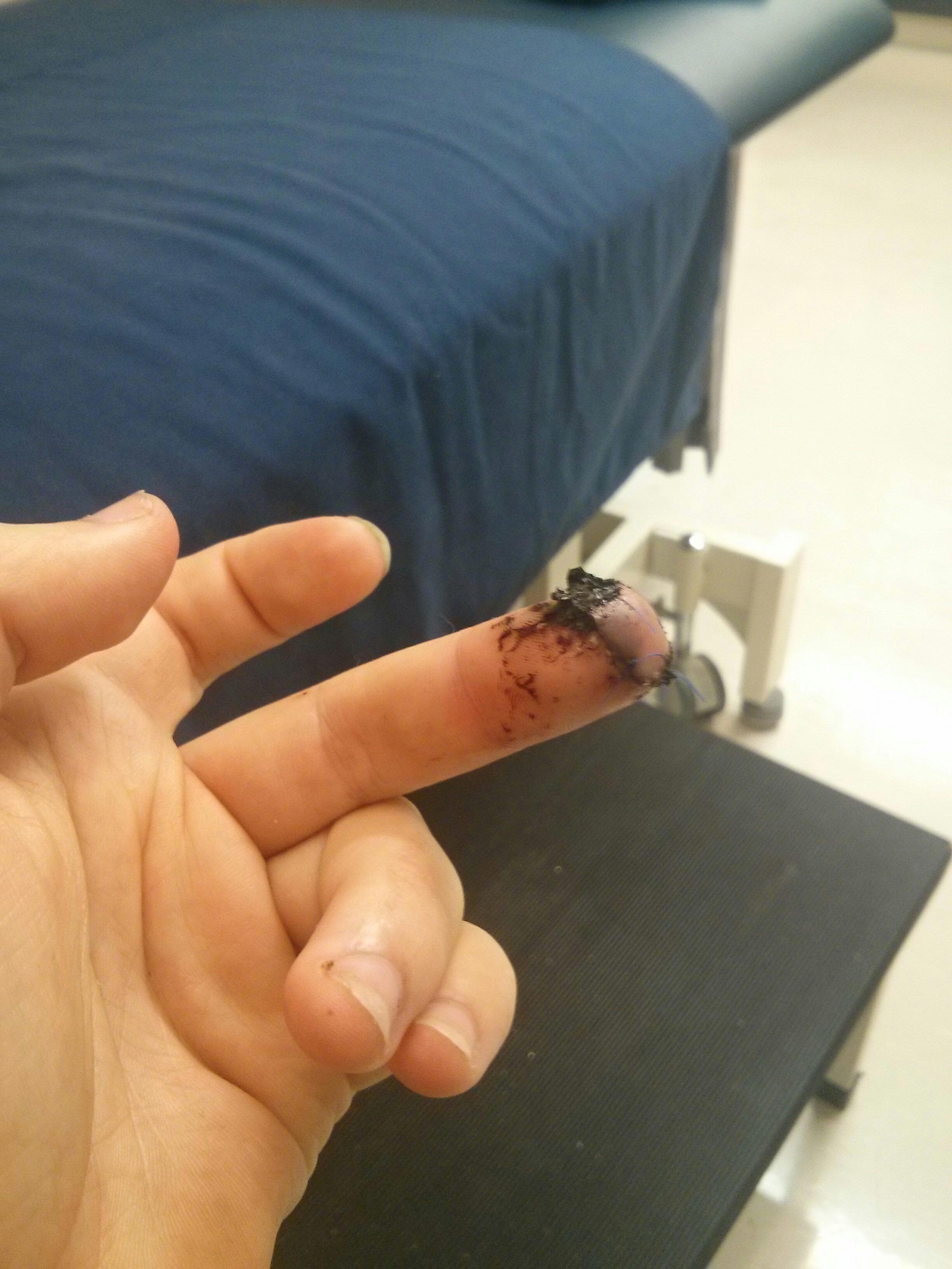 Cut my fingertip off (1)