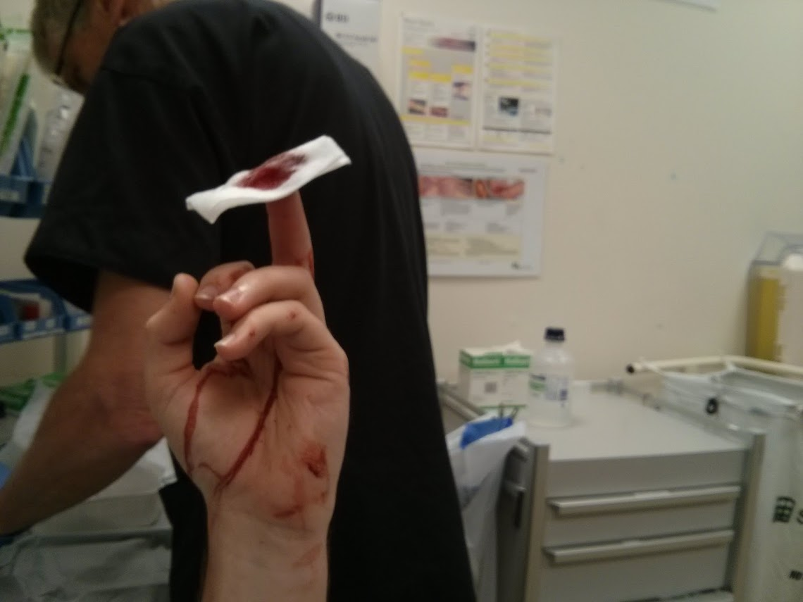 Cutting My finger up (3)