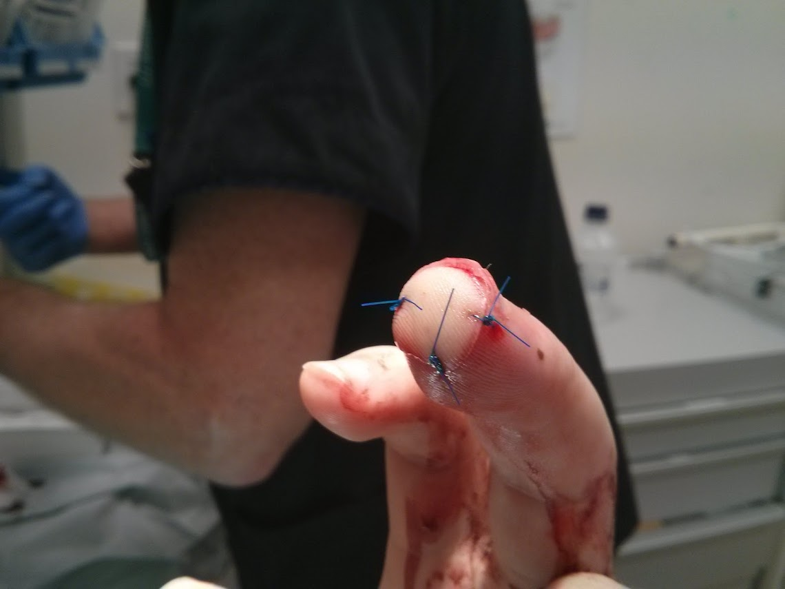 Cutting My finger up (6)
